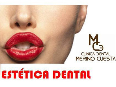 Clinica Merino Cuesta - Estetica dental - Clinica Dental Merino Cuesta
