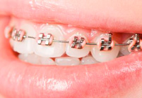 Clinica Merino Cuesta - Ortodoncia teen - Adultos - Clinica Dental Merino Cuesta